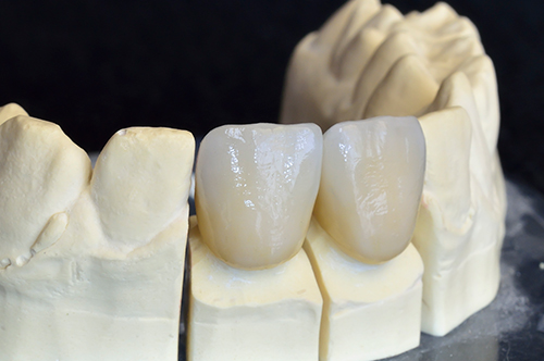 dental crowns san diego