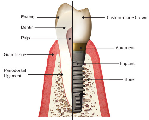 free dental implants in san diego